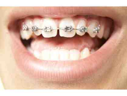 Orthodontic Treatment - $2000 off Braces or Invisalign